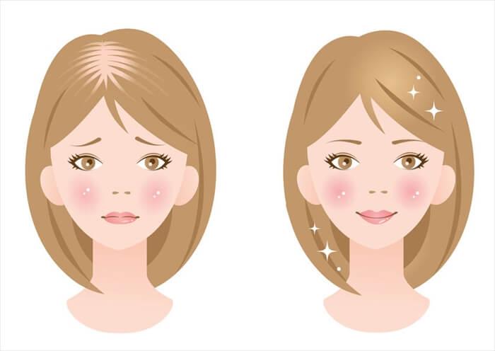 薄毛改善のための対策方法